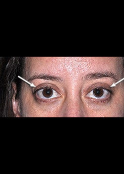 Eyelid Rejuvenation Case 4