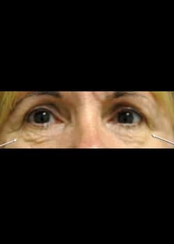 Eyelid Rejuvenation Case 5
