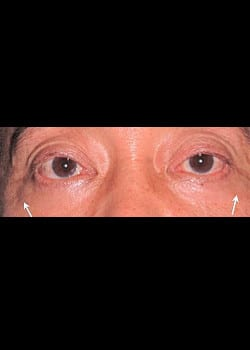 Eyelid Rejuvenation Case 6