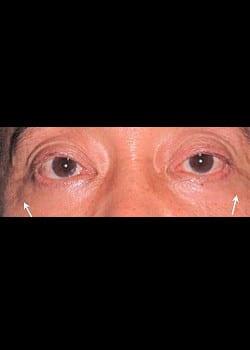 Eyelid Rejuvenation Case 6