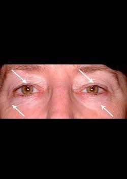 Eyelid Rejuvenation Case 7