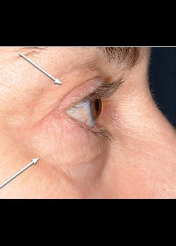 Eyelid Rejuvenation Case 8