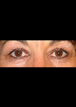 Eyelid Rejuvenation Case 9