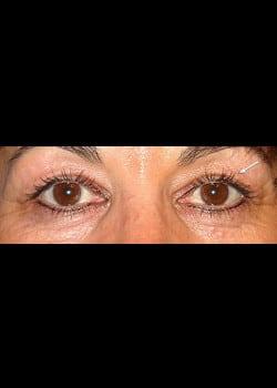 Eyelid Rejuvenation Case 9