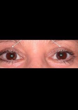 Eyelid Rejuvenation Case 10