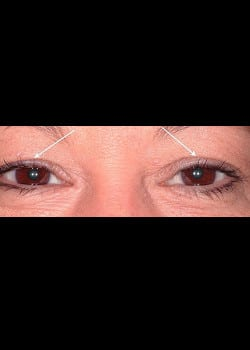 Eyelid Rejuvenation Case 10