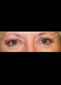 Eyelid Rejuvenation Case 11