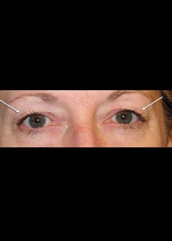 Eyelid Rejuvenation Case 11