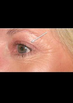 Eyelid Rejuvenation Case 12