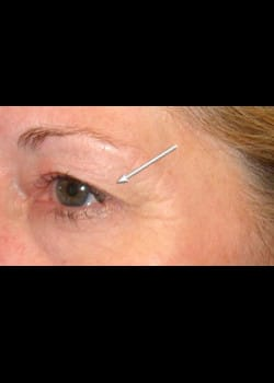 Eyelid Rejuvenation Case 12