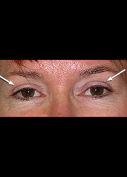 Eyelid Rejuvenation Case 13