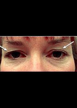 Eyelid Rejuvenation Case 13