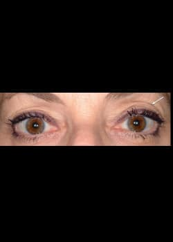 Eyelid Rejuvenation Case 14