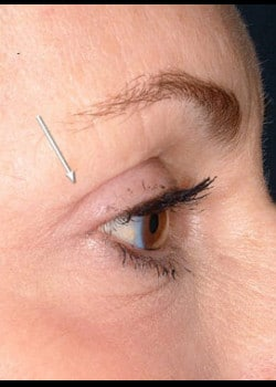 Eyelid Rejuvenation Case 15