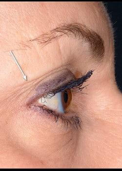 Eyelid Rejuvenation Case 15