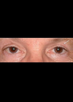 Eyelid Rejuvenation Case 16
