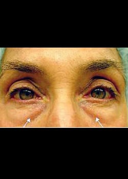 Eyelid Rejuvenation Case 17