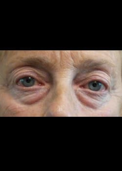 Eyelid Rejuvenation Case 18