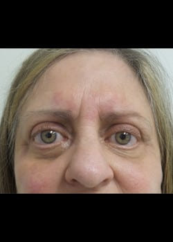 Eyelid Rejuvenation Case 19