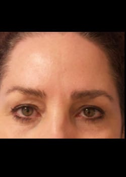 Eyelid Rejuvenation Case 20