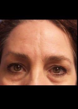 Eyelid Rejuvenation Case 20