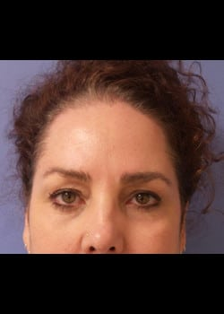 Eyelid Rejuvenation Case 21