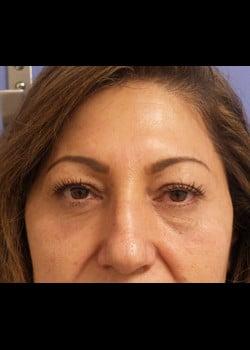 Eyelid Rejuvenation Case 22