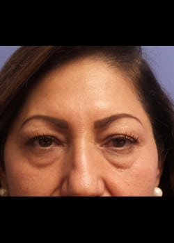 Eyelid Rejuvenation Case 22
