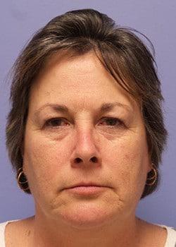 Eyelid Rejuvenation Case 24