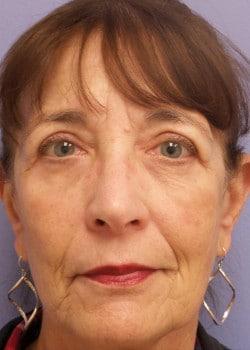 Eyelid Rejuvenation Case 25